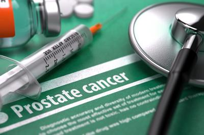 Tekoäly tunnistaa eturauhassyövän virtsasta liki 100 prosentin tarkkuudella...