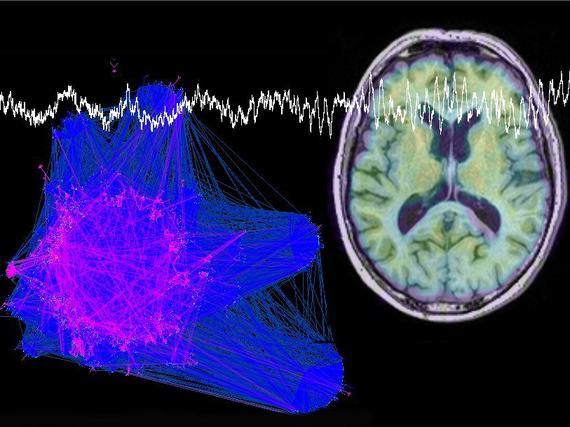 Alzheimer Tutkimus